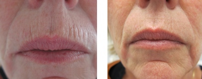 Wrinkles Removal By Fractional Co2 Laser Bcd Clinic