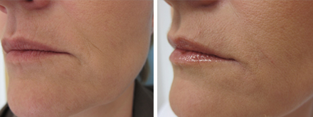 Sagging Mouth Corners Bcd Clinic