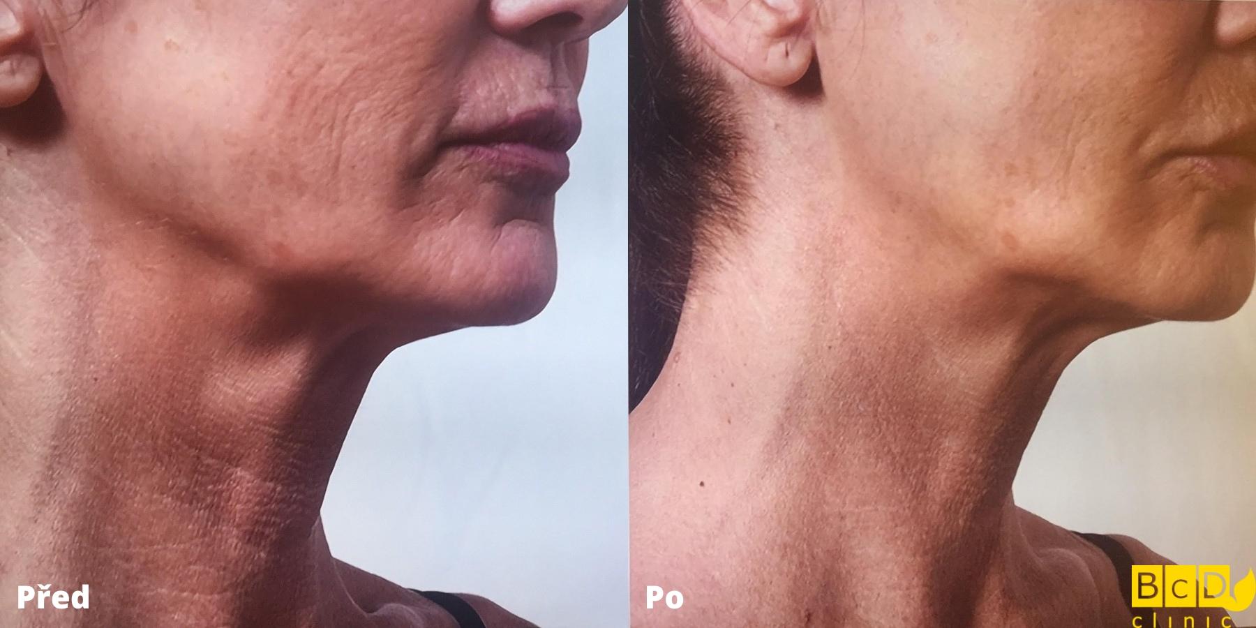 Omlazení krku hydroliftingem - před a po zákroku