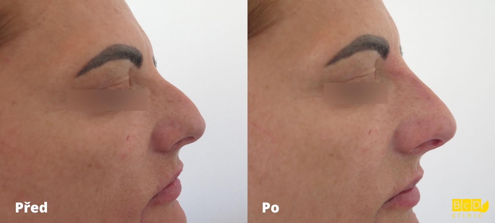 Korekce nosu kyselinou hyaluronovou