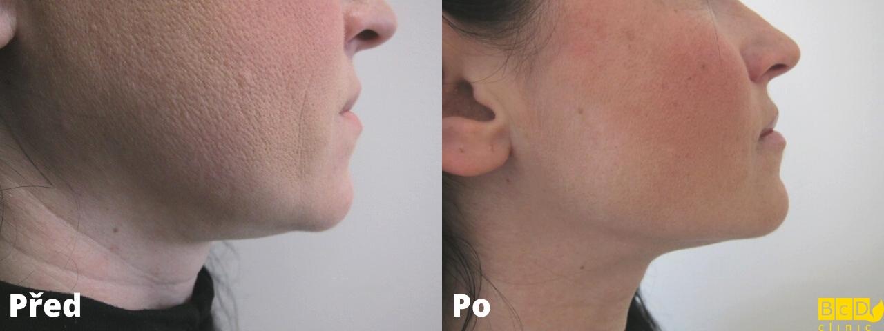 Laserová operace dvojité brady – PŘED A PO ZÁKROKU