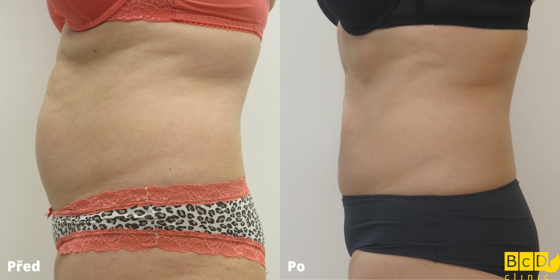 Laserová tumescentní liposukce – PŘED A PO ZÁKROKU