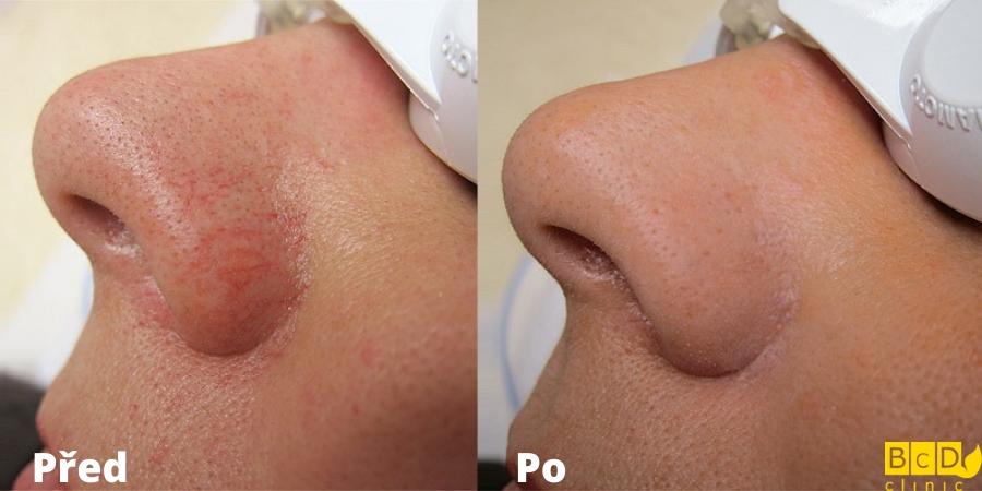 Laserové odstranění žilek na nose - před a po zákroku