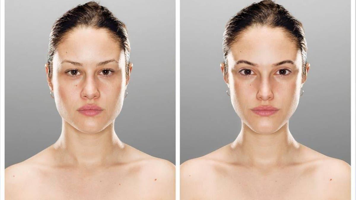 Modelace obličejových partií  kyselinou hyaluronovou