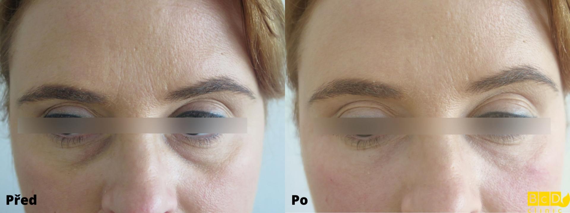 Odstranění kruhů pod očima výplněmi kyseliny hyaluronové – PŘED A PO ZÁKROKU