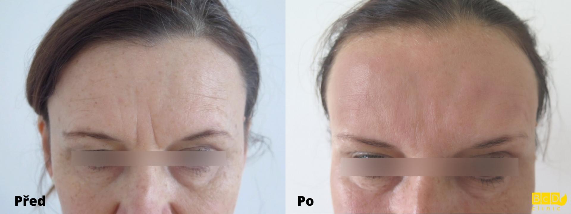 Odstranění vrásek na čele kyselinou hyaluronovou a botulotoxinem