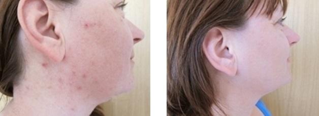 Pacientka po kombinované léčbě akné na naší klinice - před a po zákroku