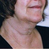Aptos lifting a lipolýza podbradku - před zákrokem