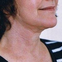 Aptos lifting a lipolýza podbradku - po zákroku