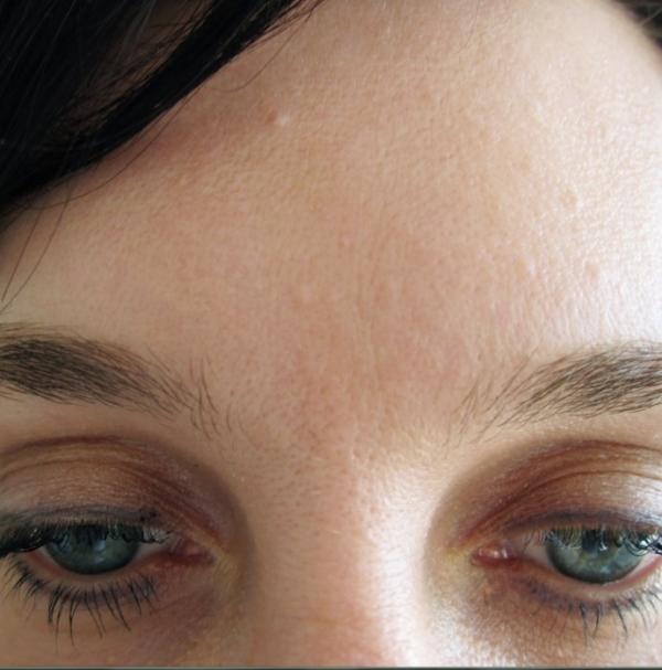 Odstranění vrásek botulotoxinem - po zákroku
