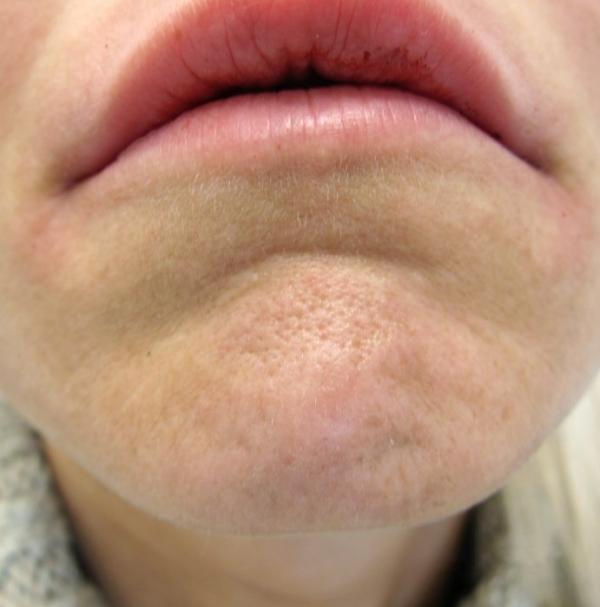Vyhlazení nerovností brady botulotoxinem - před zákrokem