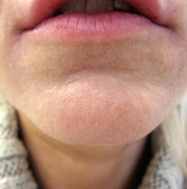 Vyhlazení nerovností brady botulotoxinem - po zákroku