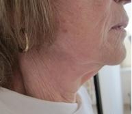 Ultherapie - spodní část obličeje - před zákrokem