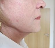 Ultherapie - spodní část obličeje - po zákroku