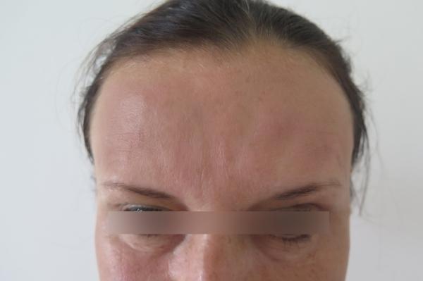 Čelo - odstranění vrásek botulotoxinem a kyselinou hyaluronovou - po zákroku