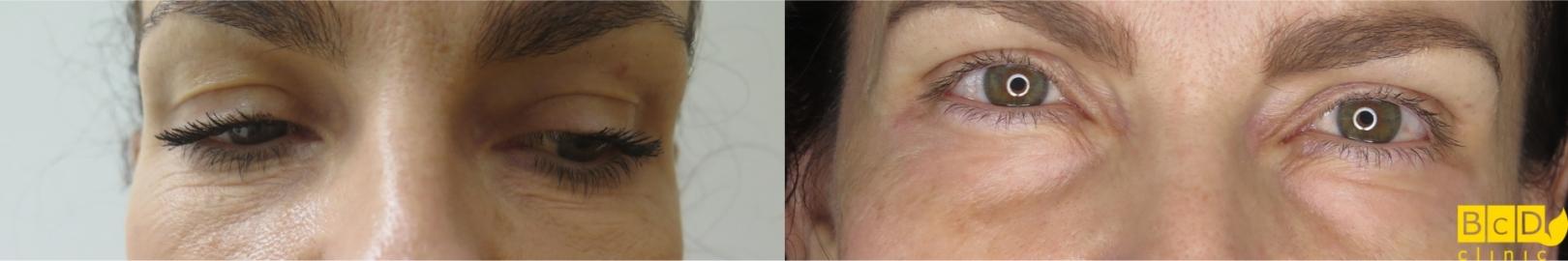 Odstranění vrásek pod očima Frakčním Co2 laserem - před a po zákroku