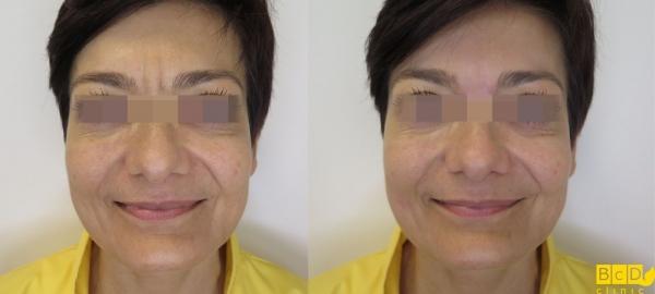 Odstranění vrásek kyselinou hyaluronovou na čele - před a po zákroku