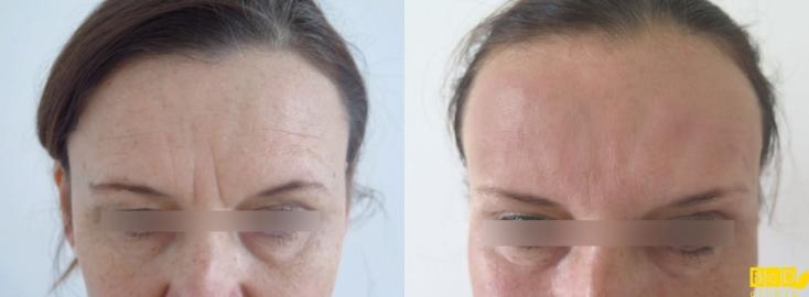 Čelo - odstranění vrásek botulotoxinem a kyselinou hyaluronovou - před zákrokem a po zákroku