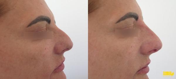 Korekce nosu kyselinou hyaluronovou - před a po zákroku