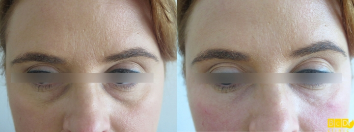 Kruhy pod očima - výplň kyselinou hyaluronovou - před a po zákroku