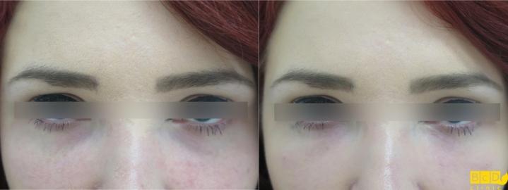 Kruhy pod očima - výplň kyselinou hyaluronovou - před zákrokem a po zákroku