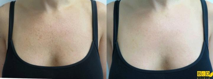 Dekolt - odstranění pigmentací - před a po
