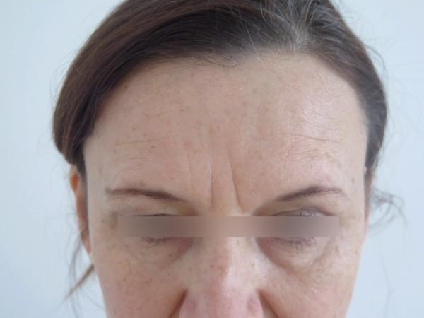 Čelo - odstranění vrásek botulotoxinem a kyselinou hyaluronovou - před zákrokem