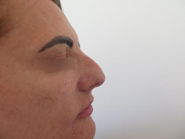 Korekce nosu kyselinou hyaluronovou - před zákrokem