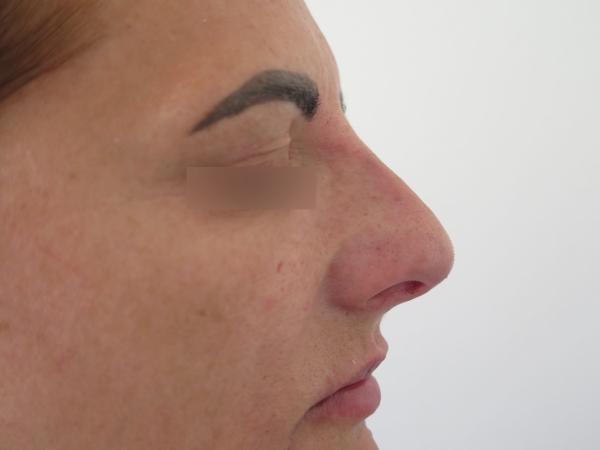 Korekce nosu kyselinou hyaluronovou - po zákroku