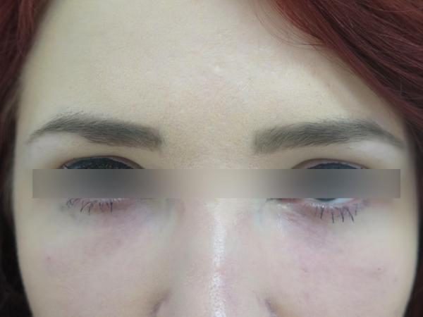 Kruhy pod očima - výplň kyselinou hyaluronovou - po zákroku
