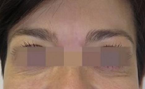 Odstranění vrásek kyselinou hyaluronovou na čele - po zákroku