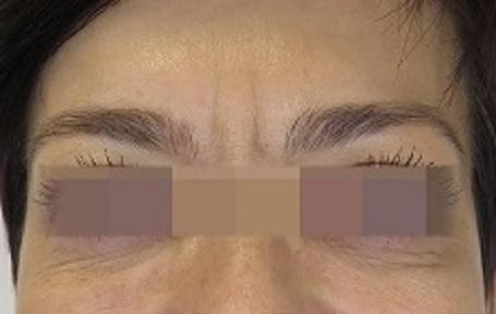 Odstranění vrásek kyselinou hyaluronovou na čele - před zákrokem