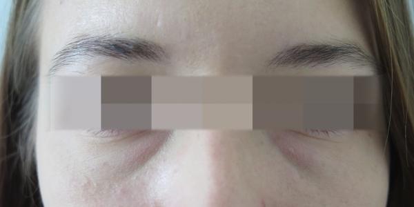 Kruhy pod očima - výplň kyselinou hyaluronovou - před zákrokem