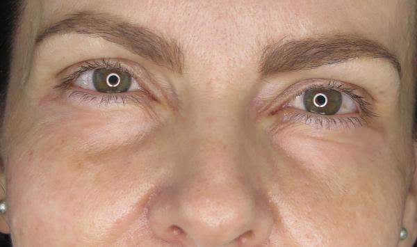 Odstranění vrásek pod očima Frakčním Co2 laserem - po zákroku