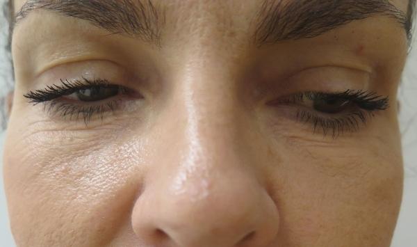 Odstranění vrásek pod očima Frakčním Co2 laserem - před zákrokem