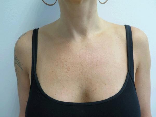 Dekolt - odstranění pigmentací - před zákrokem