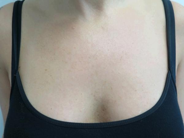 Dekolt - odstranění pigmentací - po zákroku