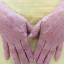 Hřbety rukou – odstranění pigmentu laserem - před zákrokem