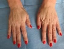 Hřbety rukou - výplň kyselinou hyaluronovou - před zákrokem