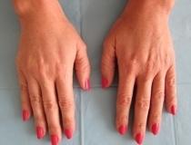 Hřbety rukou - výplň kyselinou hyaluronovou - po zákroku