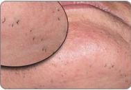 Laserová depilace - před zákrokem