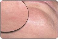 Laserová depilace - po zákroku