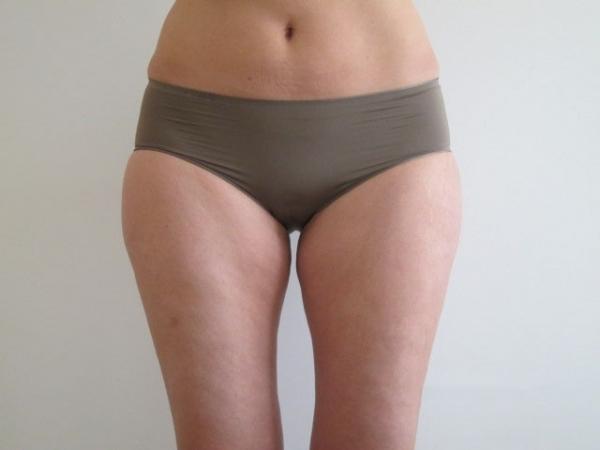 Laserová liposukce zevních a vnitřních stehen - před zákrokem