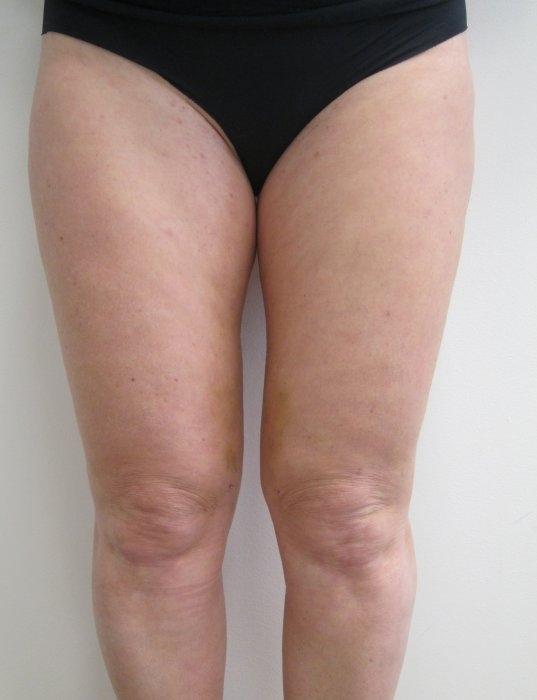 Laserová liposukce kolen - před zákrokem