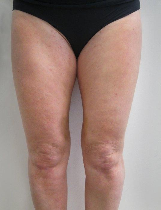 Laserová liposukce kolen - po zákroku
