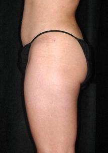 Laserová liposukce břicha - po zákroku