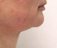 Laserové odstranění dvojité brady - před zákrokem