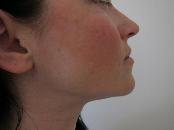 Laserové odstranění dvojité brady - po zákroku