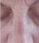 Laserové odstranění pigmentací - po zákroku