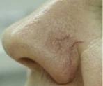 Laserové odstranění žilek - před zákrokem